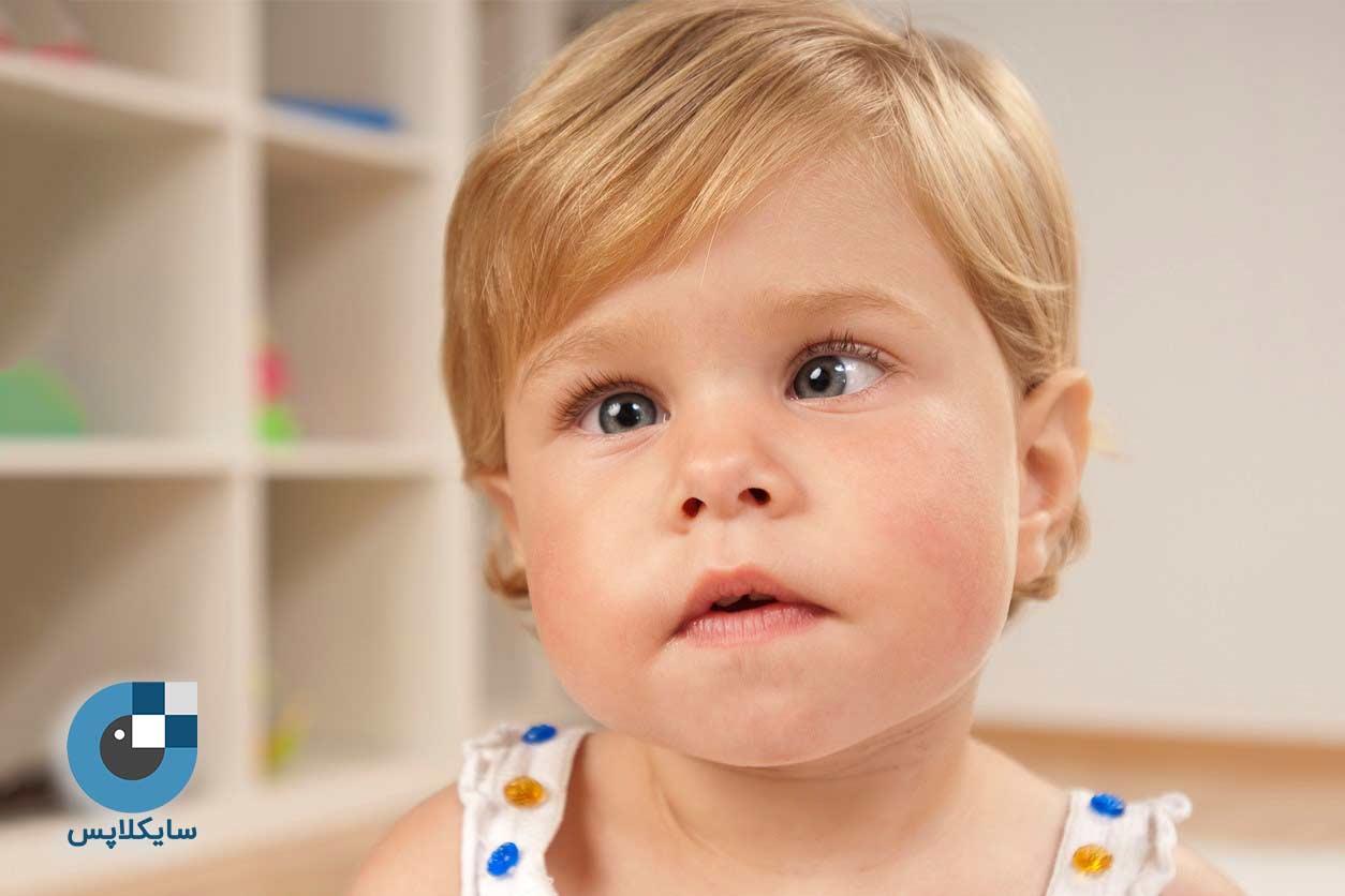 معاینه تنبلی چشم کودکان